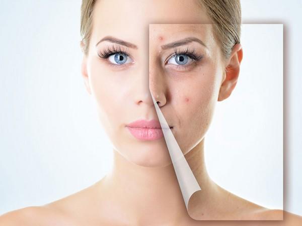 PURIFICANTE-–-EQUILIBRANTE-tratamiento-acne-centro-estetica-oviedo